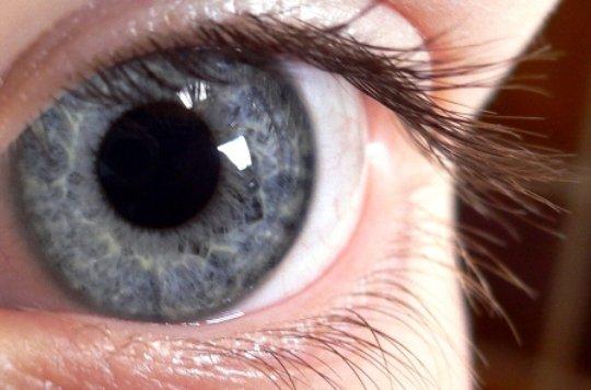 7e588be523ad0 Alternativa a la técnica LASIK para corregir la miopía - JANO.es - ELSEVIER