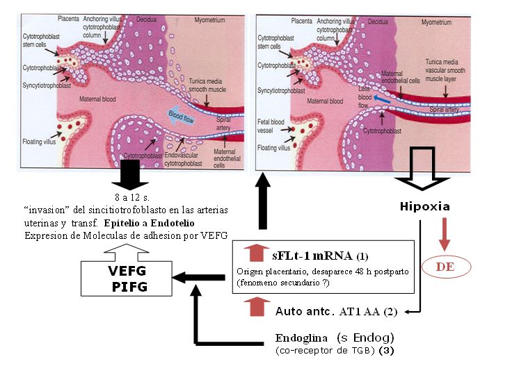 Mecanismos patogénicos de la disfunción endotelial en PRE/E