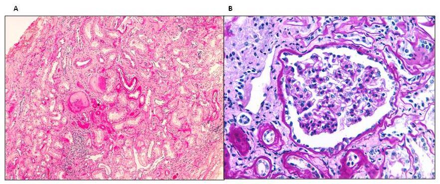 Biopsia renal de un paciente con mutación del gen UMOD. A: Fibrosis intersticial, atrofia tubular focal, esclerosis glomerular y leve infiltrado inflamatorio crónico (tinción H&E). B: Glomérulo sin alteraciones morfológicas ópticas (tinción PAS)