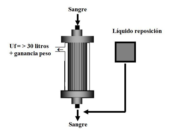 Técnica de Hemofiltración