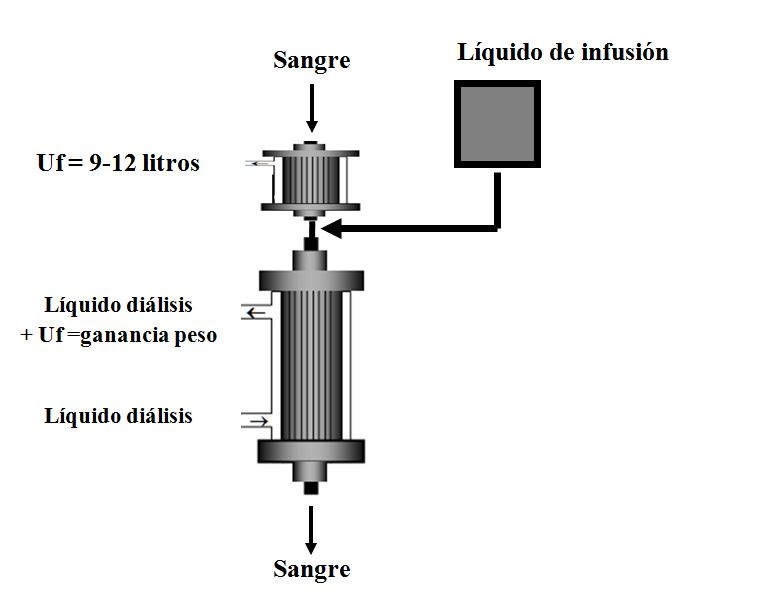 PFD (Paired filtration dialysis)