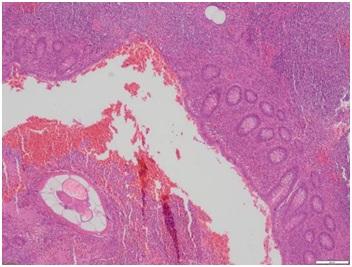 apendicitis por oxiuros