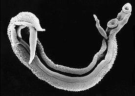 esquistosomas